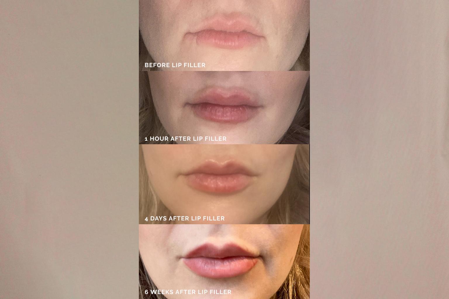 My-lip-filler-journey